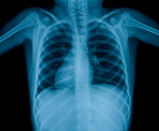 Tuberculosis at Public Schools: Symptoms and Precautions